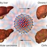 Hepatitis C Affects Human Liver