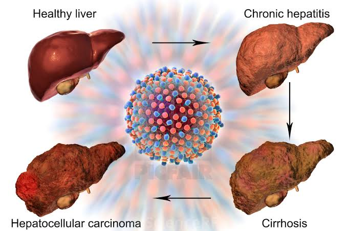 Hepatitis C Affects Human Liver
