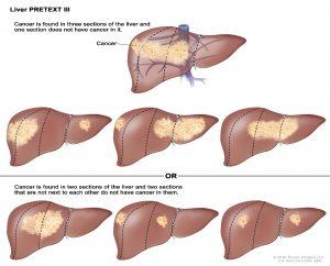 Hepatoblastoma