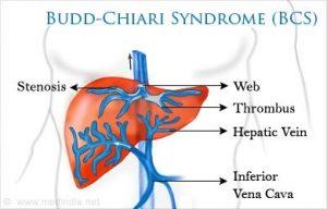 Budd-Chiari syndrome(BCS)