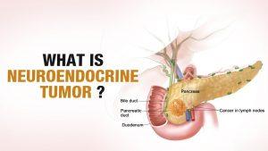 what is neuroendocrine tumor