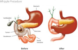 Different types of pancreatic resection