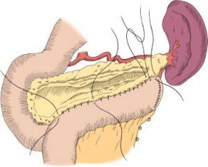 Treatment of chronic pancreatitis