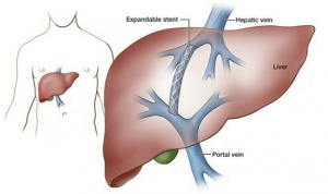 Venoplasty or angioplasty