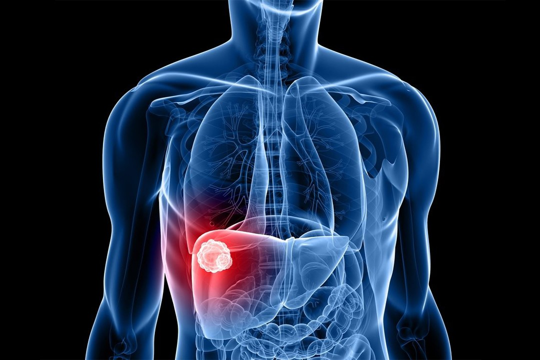 Liver Cancer & Its Causes