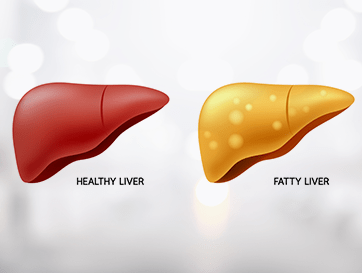 Unhealthy Liver