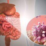 Gastroenteritis - Symptoms & Treatment