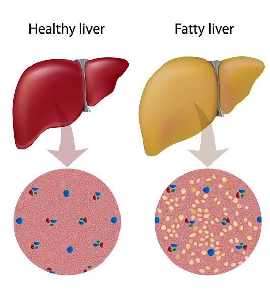 Fasting and Liver